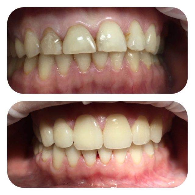 Протезирование зубов до и после